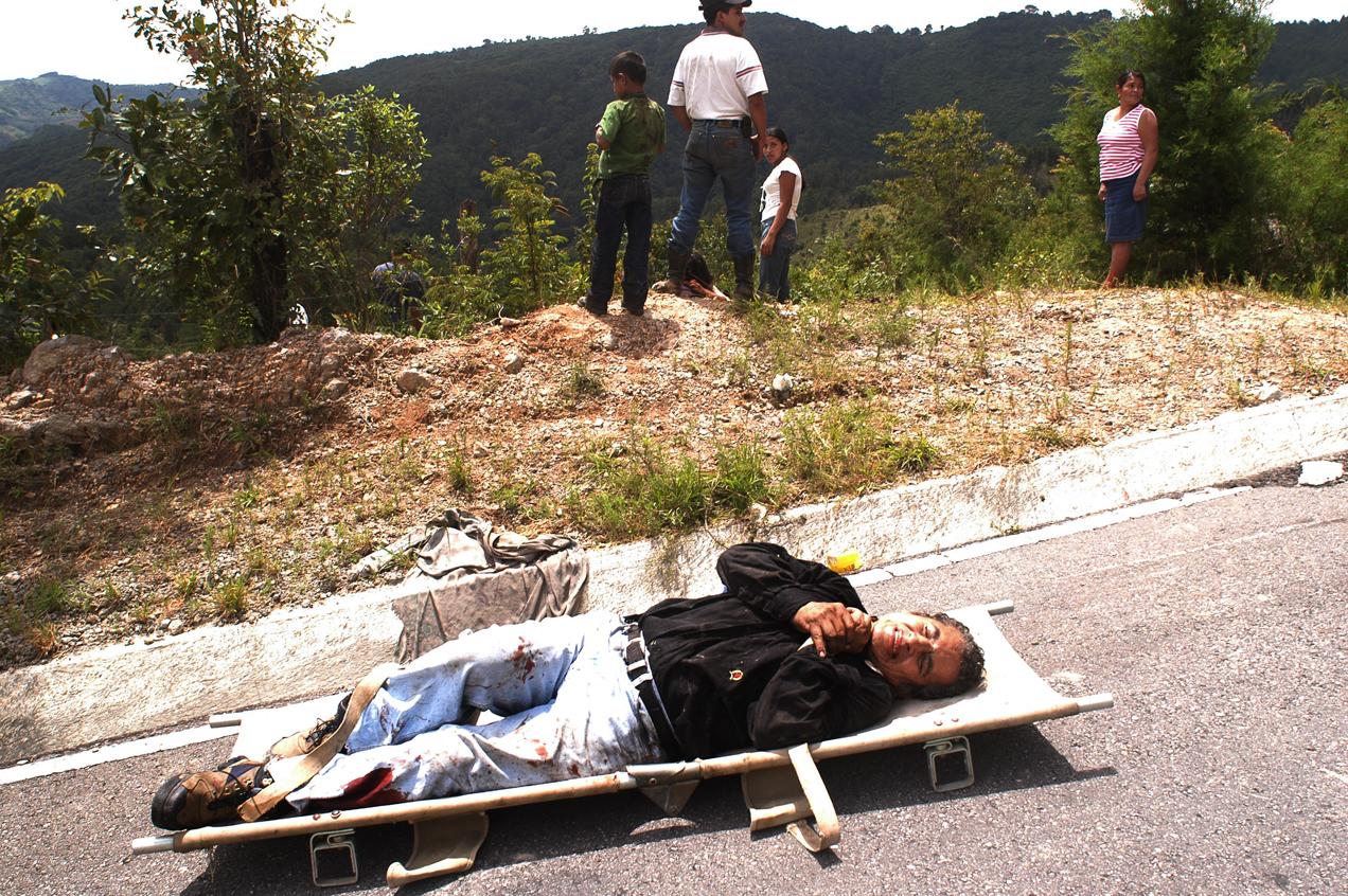 Uno de los heridos del autobús de pasajeros que cayó al barranco por exceso de velocidad.