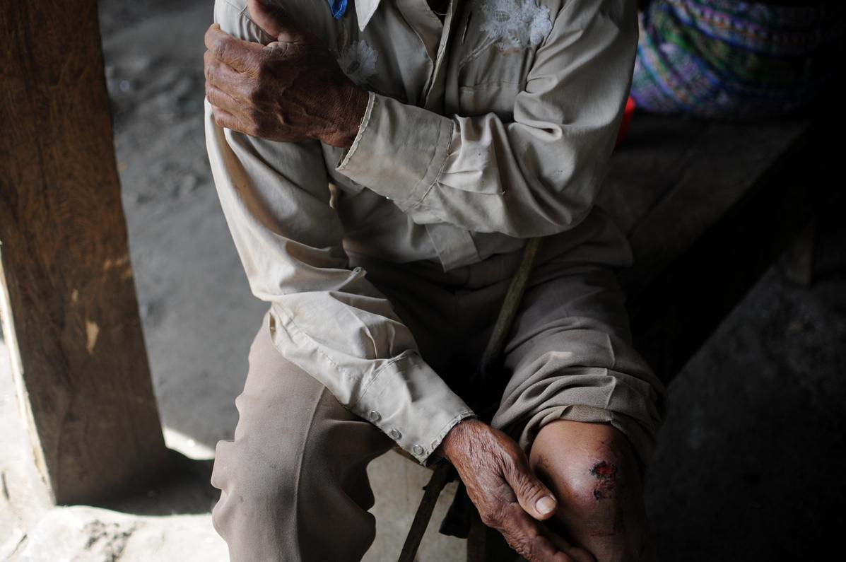 Un anciano, de 72 años, fue herido por elementos antimotines de la Policía Nacional Civil.